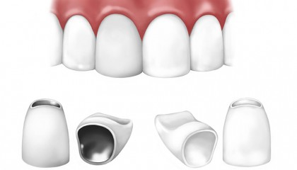 all-ceramic-crowns